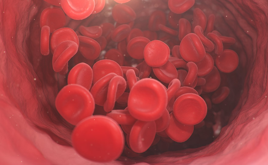 Aplastic Anemia - Red blood cells